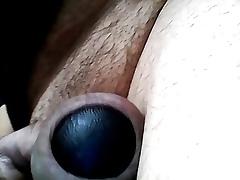 foreskin2